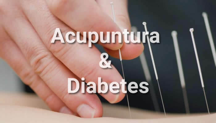 tratamiento de acupuntura para la diabetes pdf